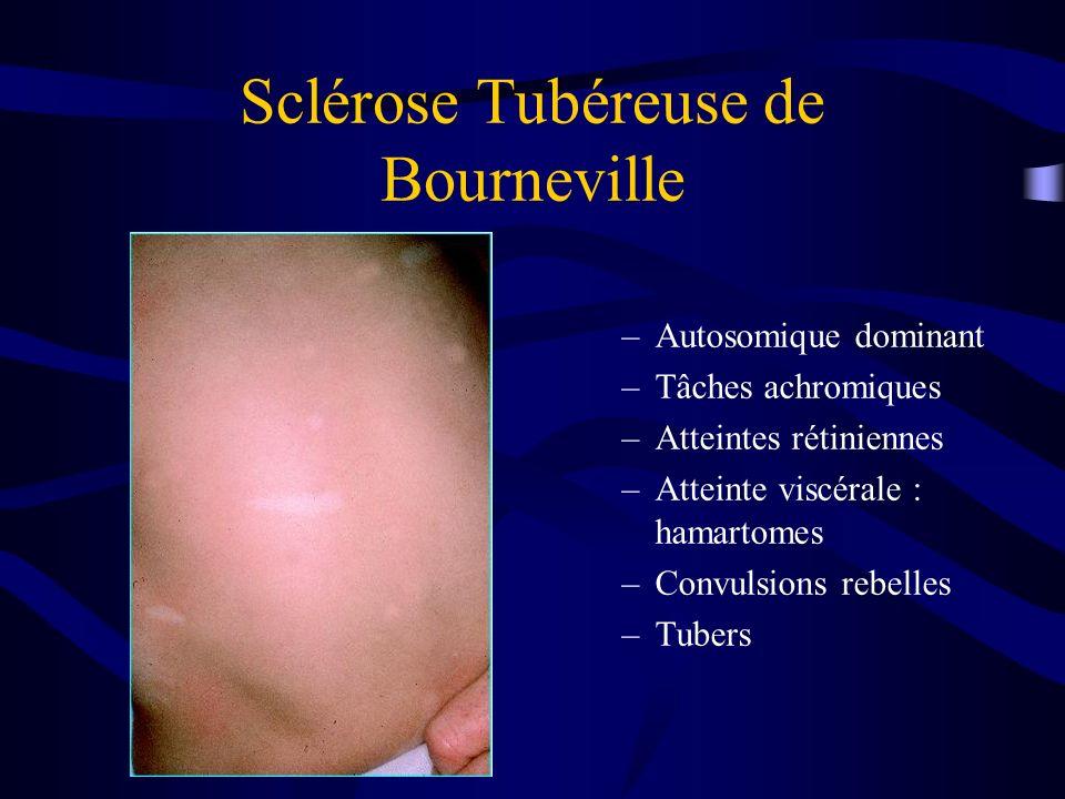 Sclérose Tubéreuse de Bourneville –Autosomique dominant –Tâches achromiques –Atteintes rétiniennes –Atteinte viscérale : hamartomes –Convulsions rebelles –Tubers