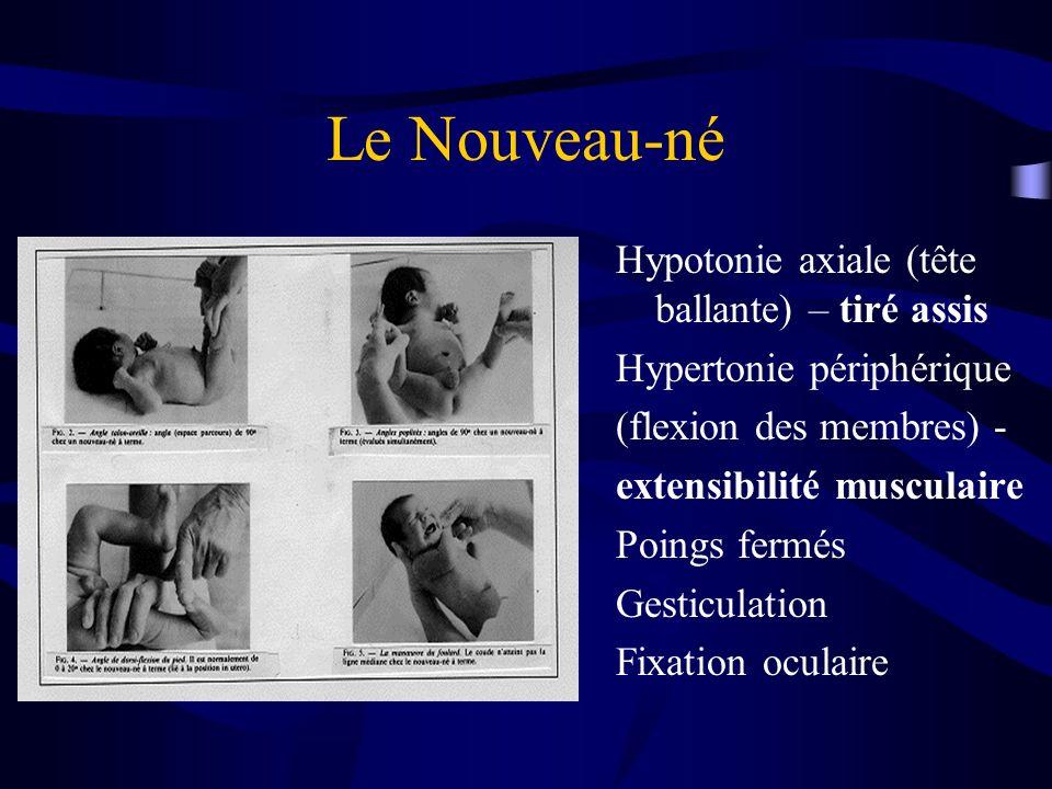 Hypotonie axiale (tête ballante) – tiré assis Hypertonie périphérique (flexion des membres) - extensibilité musculaire Poings fermés Gesticulation Fix