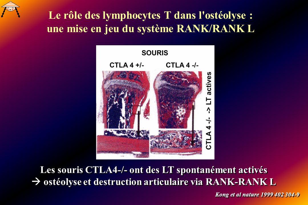 Les souris CTLA4-/- ont des LT spontanément activés ostéolyse et destruction articulaire via RANK-RANK L Kong et al nature 1999 402 304-9 Le rôle des lymphocytes T dans l ostéolyse : une mise en jeu du système RANK/RANK L
