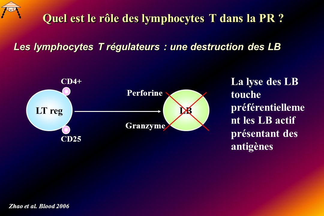 Quel est le rôle des lymphocytes T dans la PR ? Les lymphocytes T régulateurs : une destruction des LB Zhao et al. Blood 2006 LT regLB CD4+ CD25 Perfo