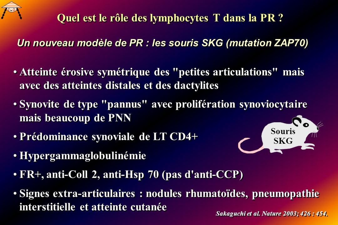 Atteinte érosive symétrique des petites articulations mais avec des atteintes distales et des dactylites Synovite de type pannus avec prolifération synoviocytaire mais beaucoup de PNN Prédominance synoviale de LT CD4+ Hypergammaglobulinémie FR+, anti-Coll 2, anti-Hsp 70 (pas d anti-CCP) Signes extra-articulaires : nodules rhumatoïdes, pneumopathie interstitielle et atteinte cutanée Atteinte érosive symétrique des petites articulations mais avec des atteintes distales et des dactylites Synovite de type pannus avec prolifération synoviocytaire mais beaucoup de PNN Prédominance synoviale de LT CD4+ Hypergammaglobulinémie FR+, anti-Coll 2, anti-Hsp 70 (pas d anti-CCP) Signes extra-articulaires : nodules rhumatoïdes, pneumopathie interstitielle et atteinte cutanée Souris SKG Sakaguchi et al.