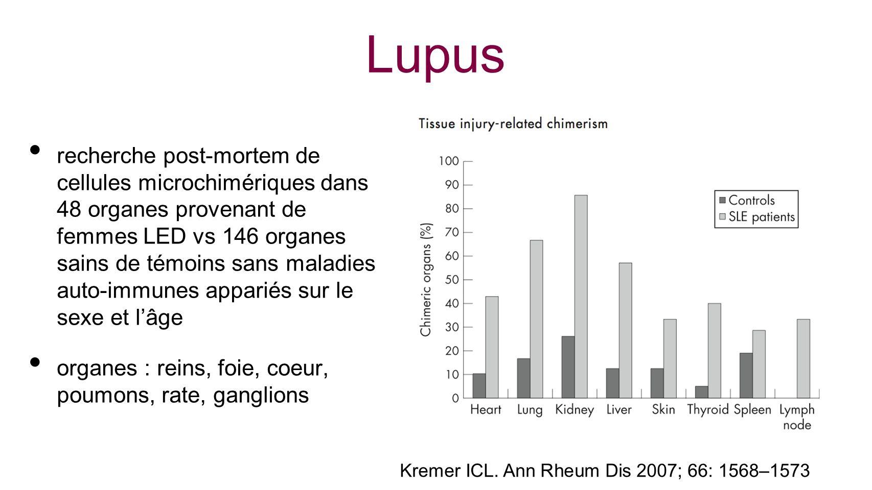 Lupus recherche post-mortem de cellules microchimériques dans 48 organes provenant de femmes LED vs 146 organes sains de témoins sans maladies auto-im