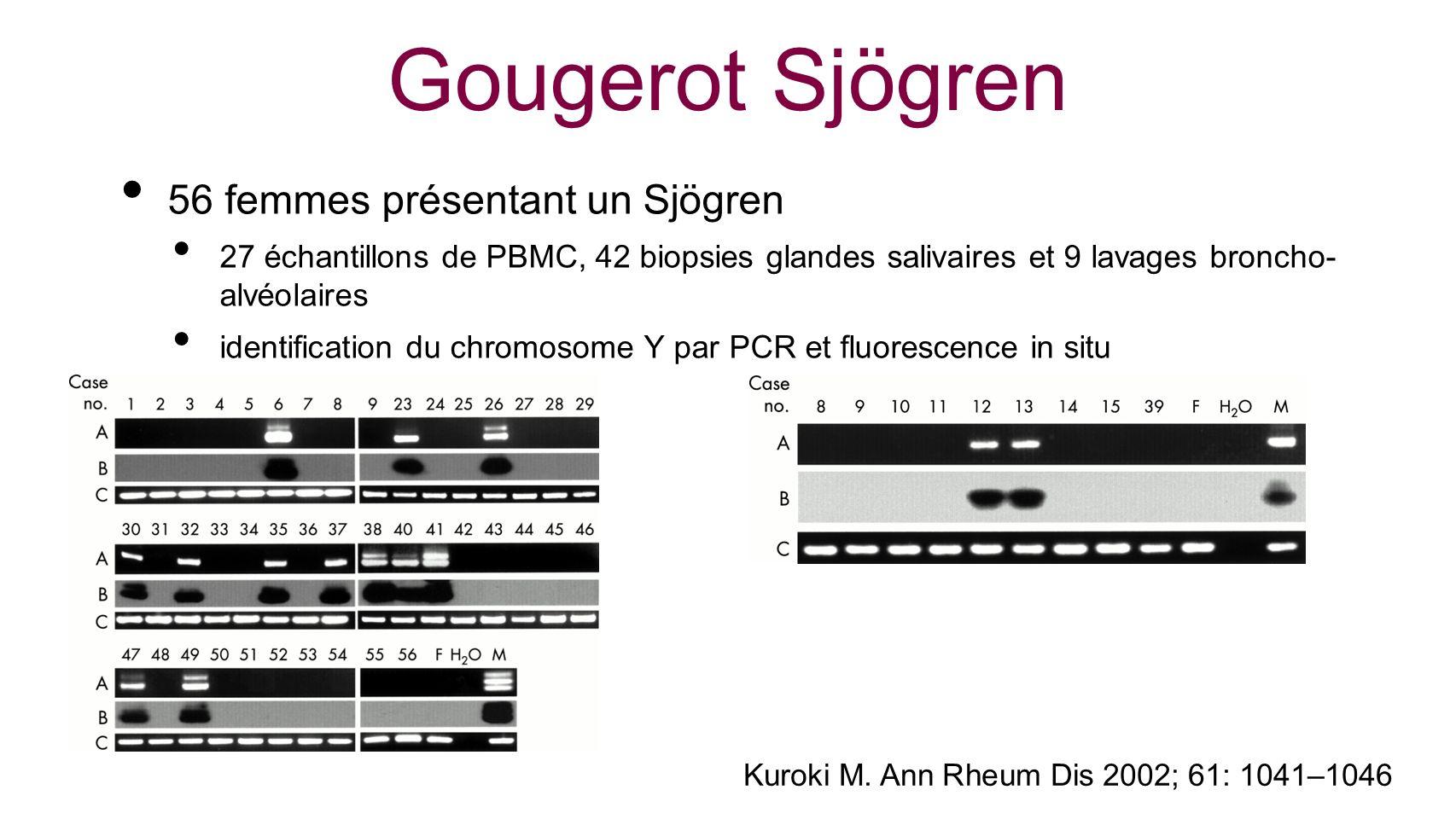 Gougerot Sjögren 56 femmes présentant un Sjögren 27 échantillons de PBMC, 42 biopsies glandes salivaires et 9 lavages broncho- alvéolaires identificat