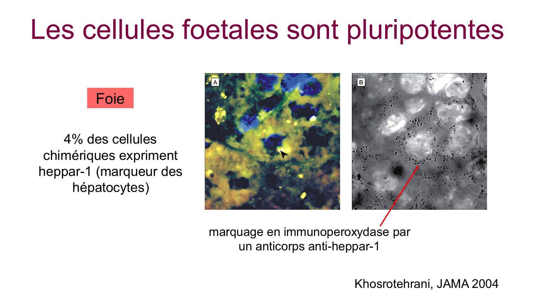 Les cellules foetales sont pluripotentes marquage en immunoperoxydase par un anticorps anti-heppar-1 Foie Khosrotehrani, JAMA 2004 4% des cellules chi