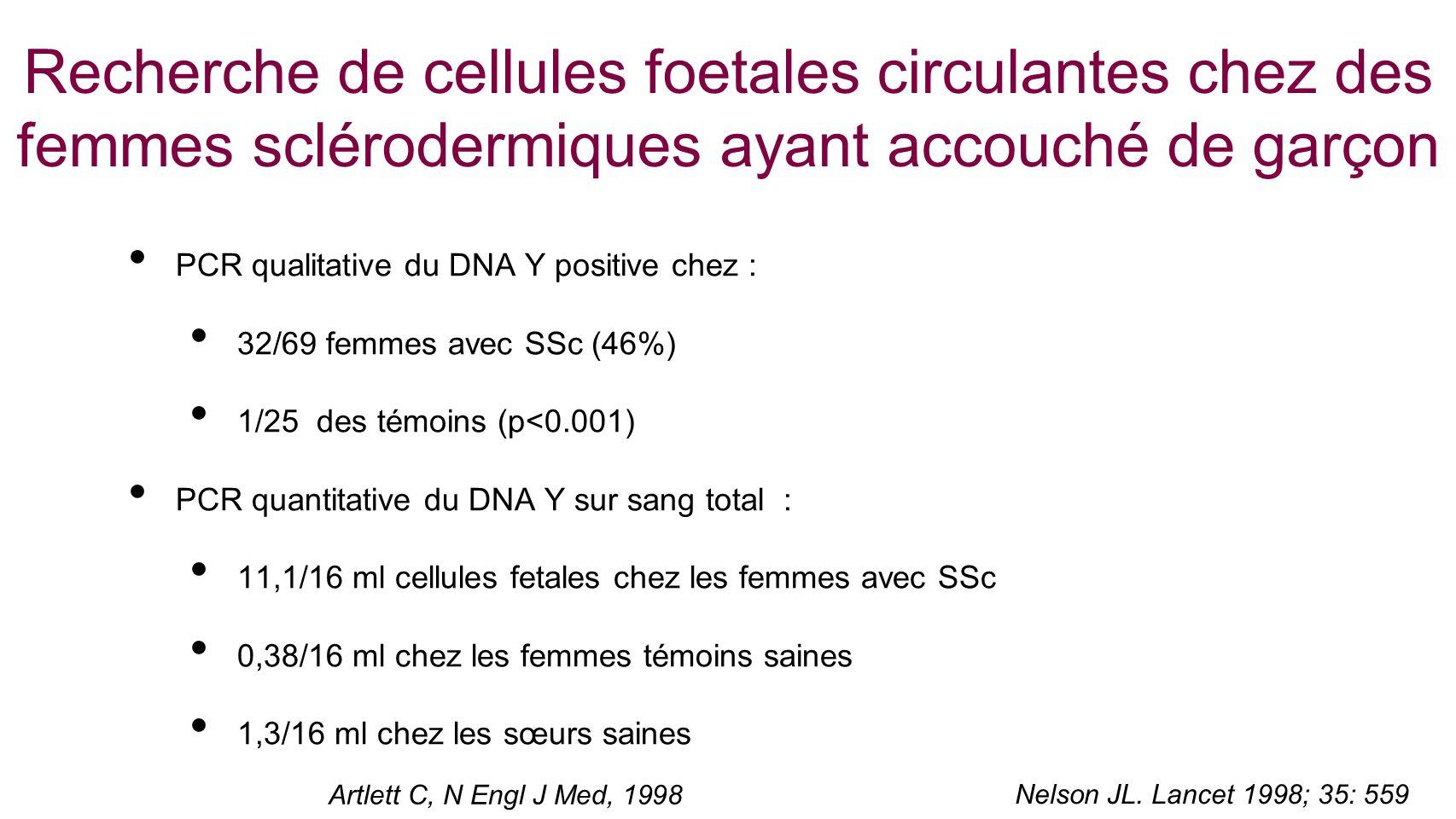 Recherche de cellules foetales circulantes chez des femmes sclérodermiques ayant accouché de garçon PCR qualitative du DNA Y positive chez : 32/69 fem