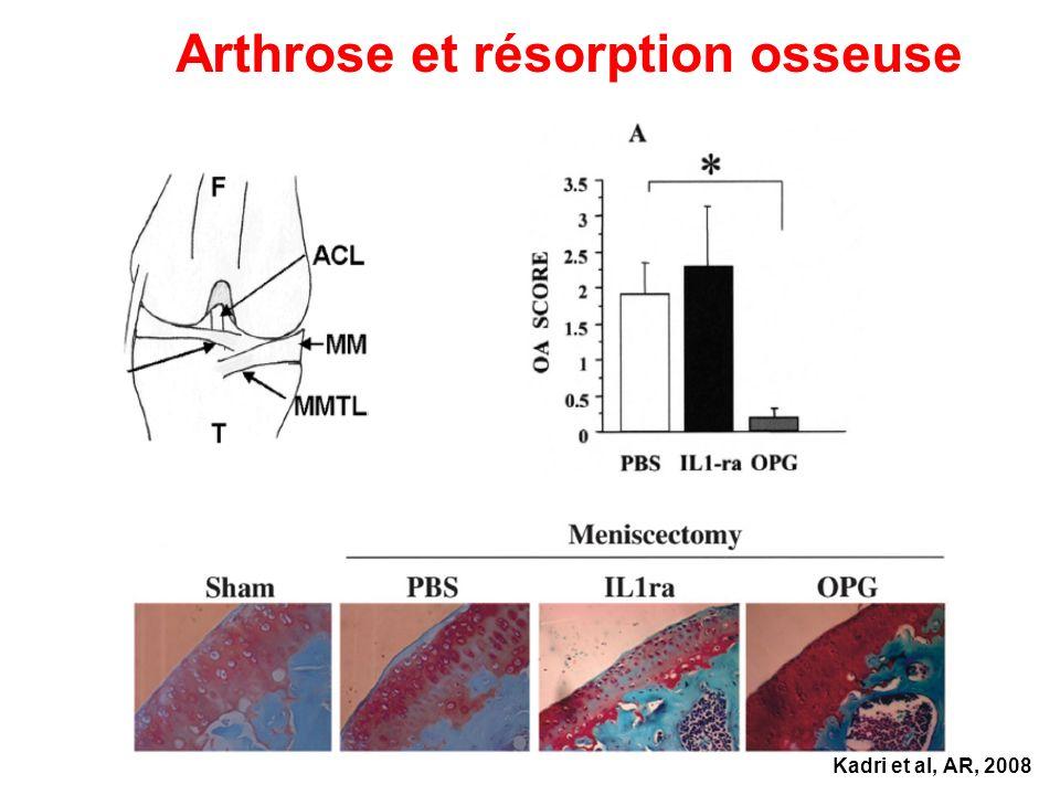 Arthrose et résorption osseuse Kadri et al, AR, 2008