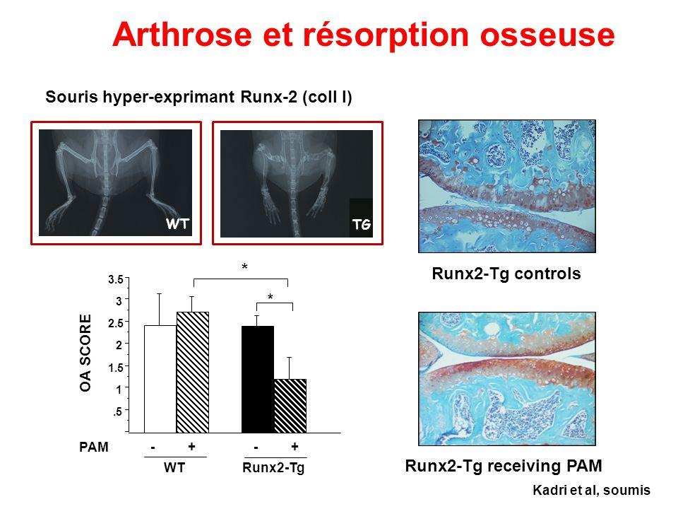 .5 1 1.5 2 2.5 3 3.5 - + WTRunx2-Tg PAM OA SCORE * * Runx2-Tg controls Runx2-Tg receiving PAM Arthrose et résorption osseuse Kadri et al, soumis WT TG