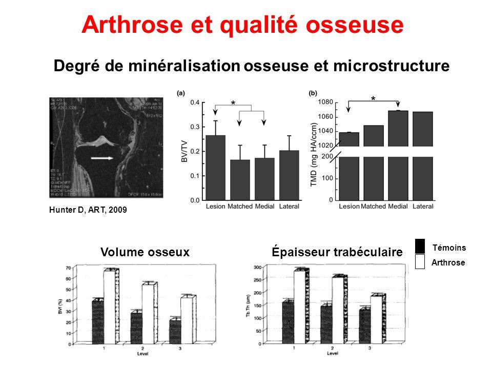 Hunter D, ART, 2009 Degré de minéralisation osseuse et microstructure Arthrose et qualité osseuse Arthrose Témoins Volume osseuxÉpaisseur trabéculaire