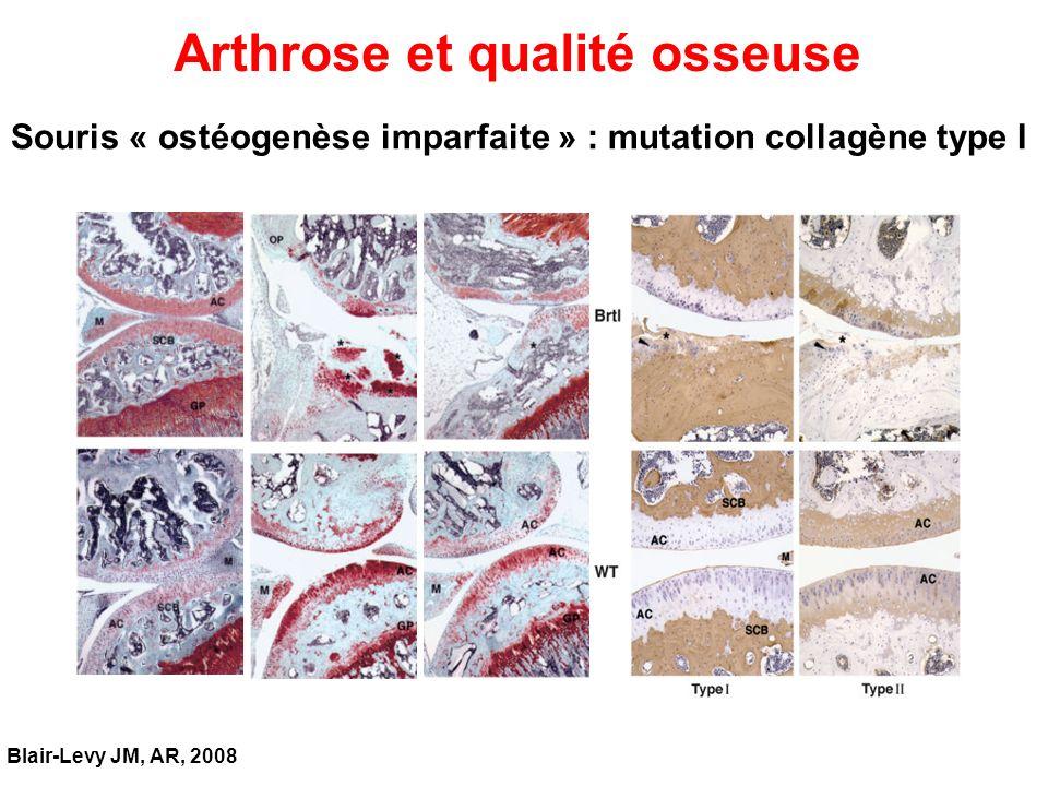 Arthrose et qualité osseuse Blair-Levy JM, AR, 2008 Souris « ostéogenèse imparfaite » : mutation collagène type I