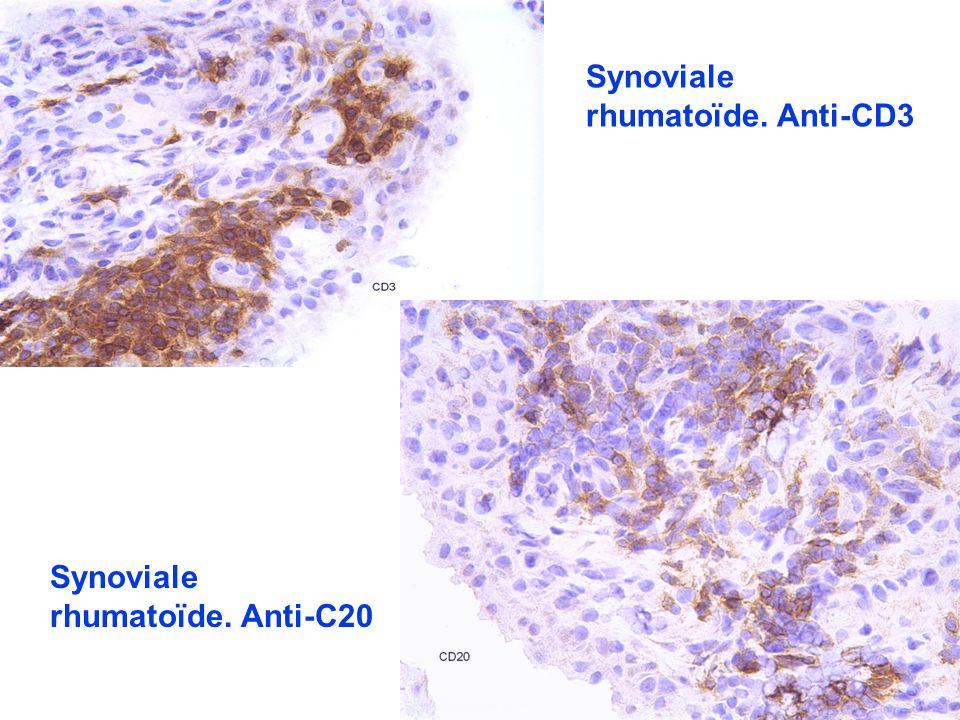 Synoviale rhumatoïde. Anti-CD3 Synoviale rhumatoïde. Anti-C20