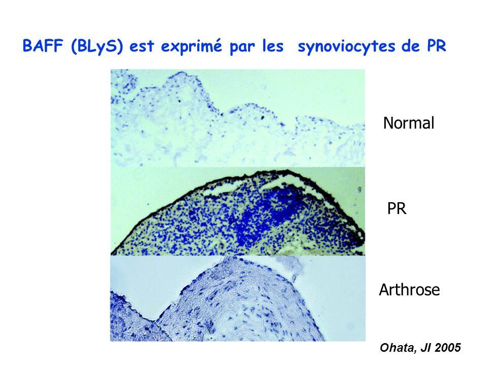 BAFF (BLyS) est exprimé par les synoviocytes de PR Ohata, JI 2005 Normal PR Arthrose