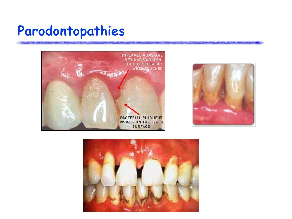 Parodontopathies