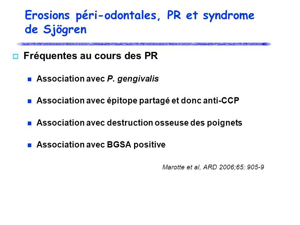 Erosions péri-odontales, PR et syndrome de Sjögren Fréquentes au cours des PR Association avec P. gengivalis Association avec épitope partagé et donc