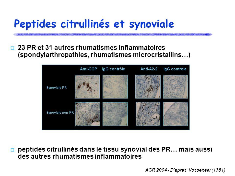 23 PR et 31 autres rhumatismes inflammatoires (spondylarthropathies, rhumatismes microcristallins…) peptides citrullinés dans le tissu synovial des PR… mais aussi des autres rhumatismes inflammatoires ACR 2004 - Daprès Vossenaar (1361) Peptides citrullinés et synoviale IgG contrôle Synoviale PR Synoviale non PR Anti-CCPAnti-A2-2IgG contrôle