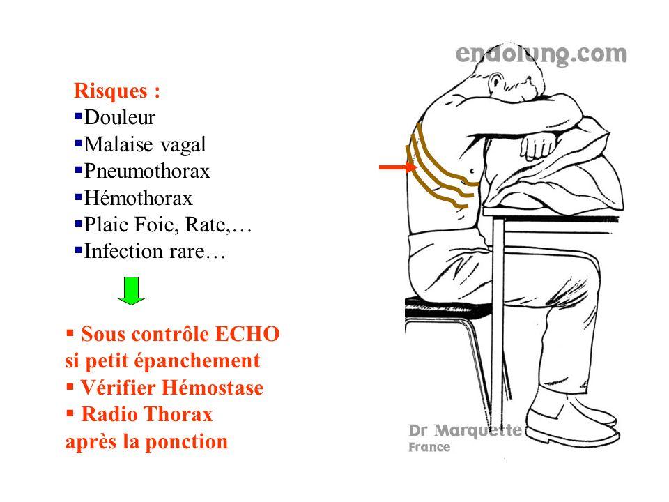 Risques : Douleur Malaise vagal Pneumothorax Hémothorax Plaie Foie, Rate,… Infection rare… Sous contrôle ECHO si petit épanchement Vérifier Hémostase Radio Thorax après la ponction