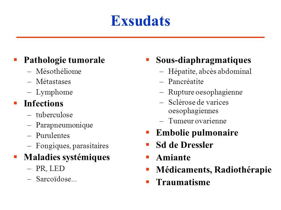 Exsudats Pathologie tumorale –Mésothéliome –Métastases –Lymphome Infections –tuberculose –Parapneumonique –Purulentes –Fongiques, parasitaires Maladie