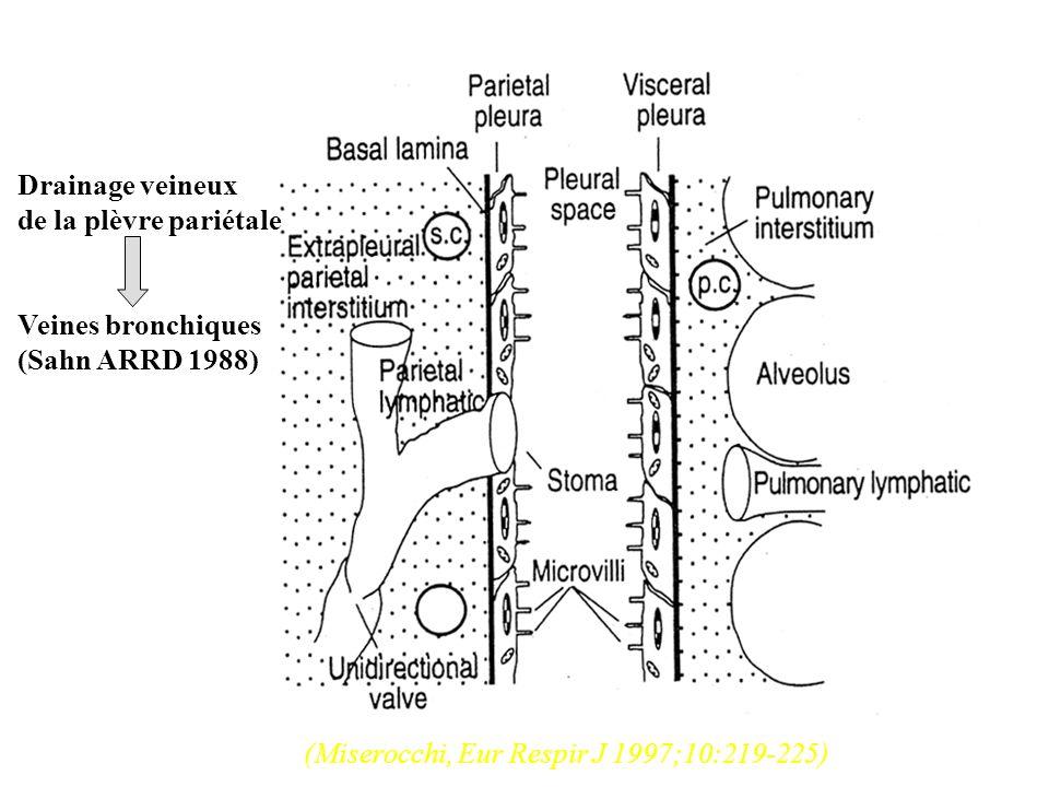 Ponctionner tous les épanchement SAUF si cest dangereux : petit épanchement (< 10mm en décubitus latéral) si c est inutile : déjà ponctionné insuffisance cardiaque connue