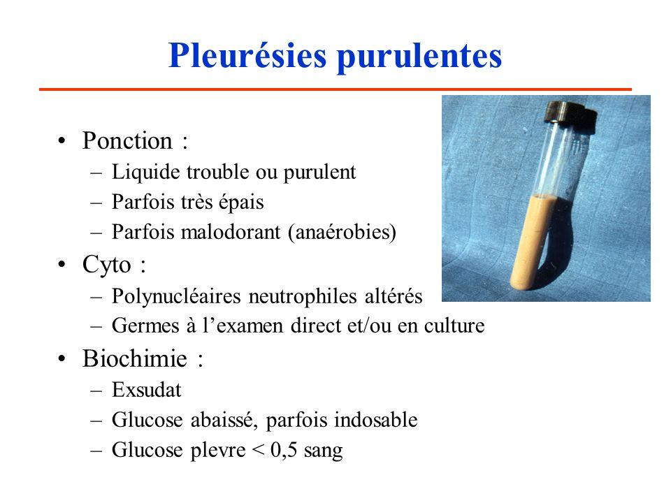 Pleurésies purulentes Ponction : –Liquide trouble ou purulent –Parfois très épais –Parfois malodorant (anaérobies) Cyto : –Polynucléaires neutrophiles