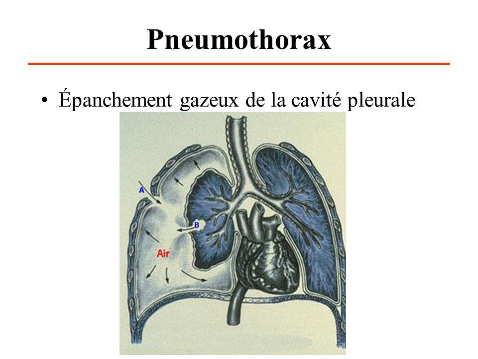 Pneumothorax Épanchement gazeux de la cavité pleurale