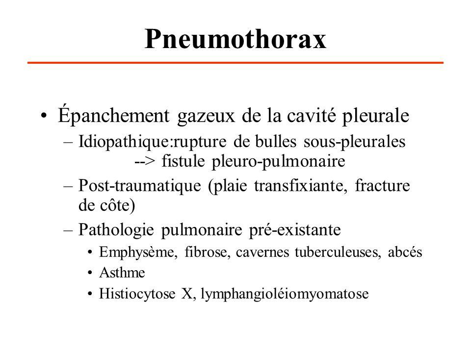 Pneumothorax Épanchement gazeux de la cavité pleurale –Idiopathique:rupture de bulles sous-pleurales --> fistule pleuro-pulmonaire –Post-traumatique (plaie transfixiante, fracture de côte) –Pathologie pulmonaire pré-existante Emphysème, fibrose, cavernes tuberculeuses, abcés Asthme Histiocytose X, lymphangioléiomyomatose