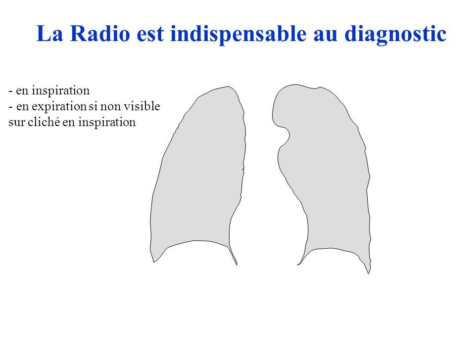 La Radio est indispensable au diagnostic - en inspiration - en expiration si non visible sur cliché en inspiration