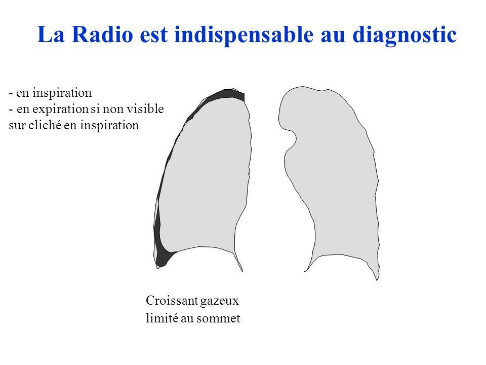 Croissant gazeux limité au sommet La Radio est indispensable au diagnostic - en inspiration - en expiration si non visible sur cliché en inspiration