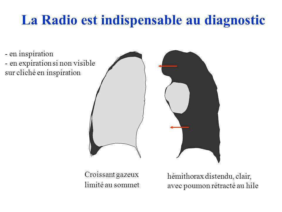 Croissant gazeux limité au sommet La Radio est indispensable au diagnostic - en inspiration - en expiration si non visible sur cliché en inspiration hémithorax distendu, clair, avec poumon rétracté au hile