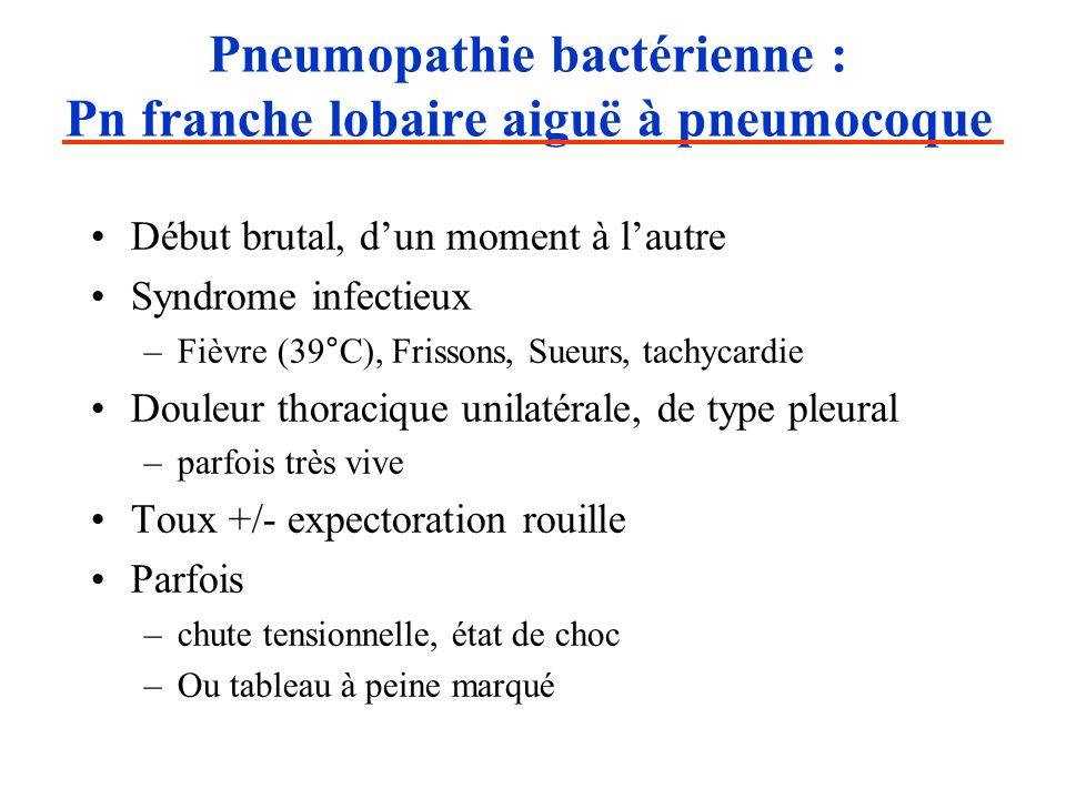 Pneumopathie bactérienne : Pn franche lobaire aiguë à pneumocoque Début brutal, dun moment à lautre Syndrome infectieux –Fièvre (39°C), Frissons, Sueu