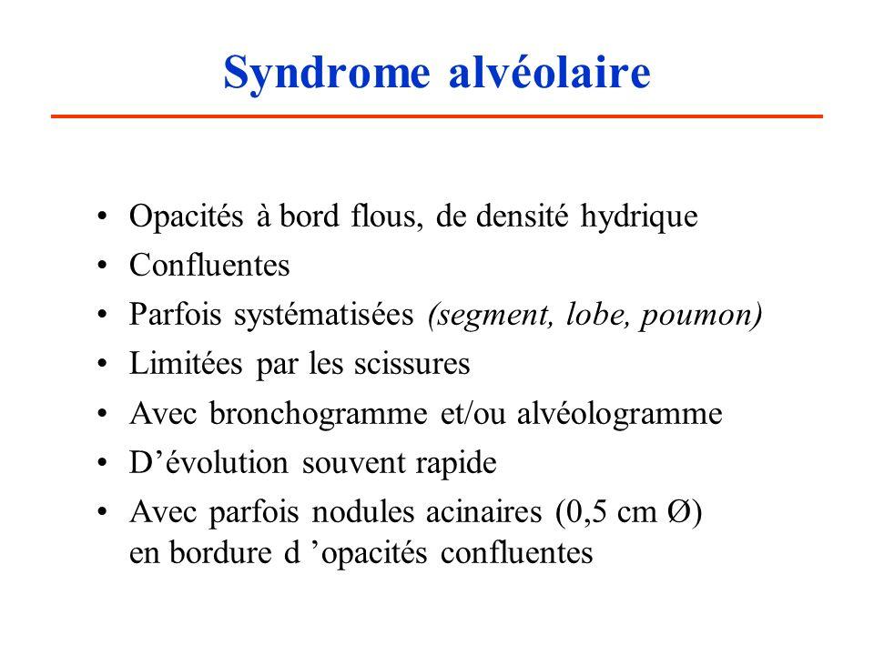 Syndrome alvéolaire Opacités à bord flous, de densité hydrique Confluentes Parfois systématisées (segment, lobe, poumon) Limitées par les scissures Av