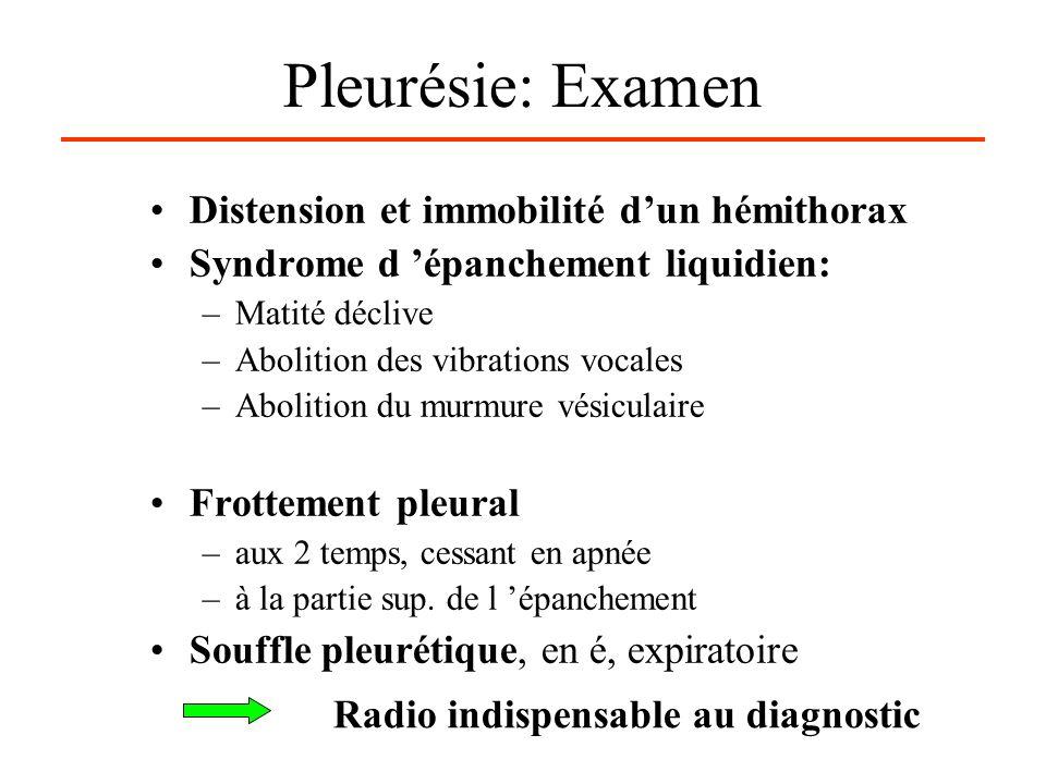 Pleurésie: Examen Distension et immobilité dun hémithorax Syndrome d épanchement liquidien: –Matité déclive –Abolition des vibrations vocales –Aboliti