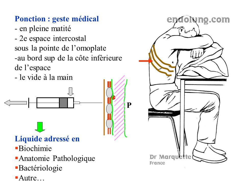 Ponction : geste médical - en pleine matité - 2e espace intercostal sous la pointe de lomoplate -au bord sup de la côte infèrieure de lespace - le vide à la main Liquide adressé en Biochimie Anatomie Pathologique Bactériologie Autre… P