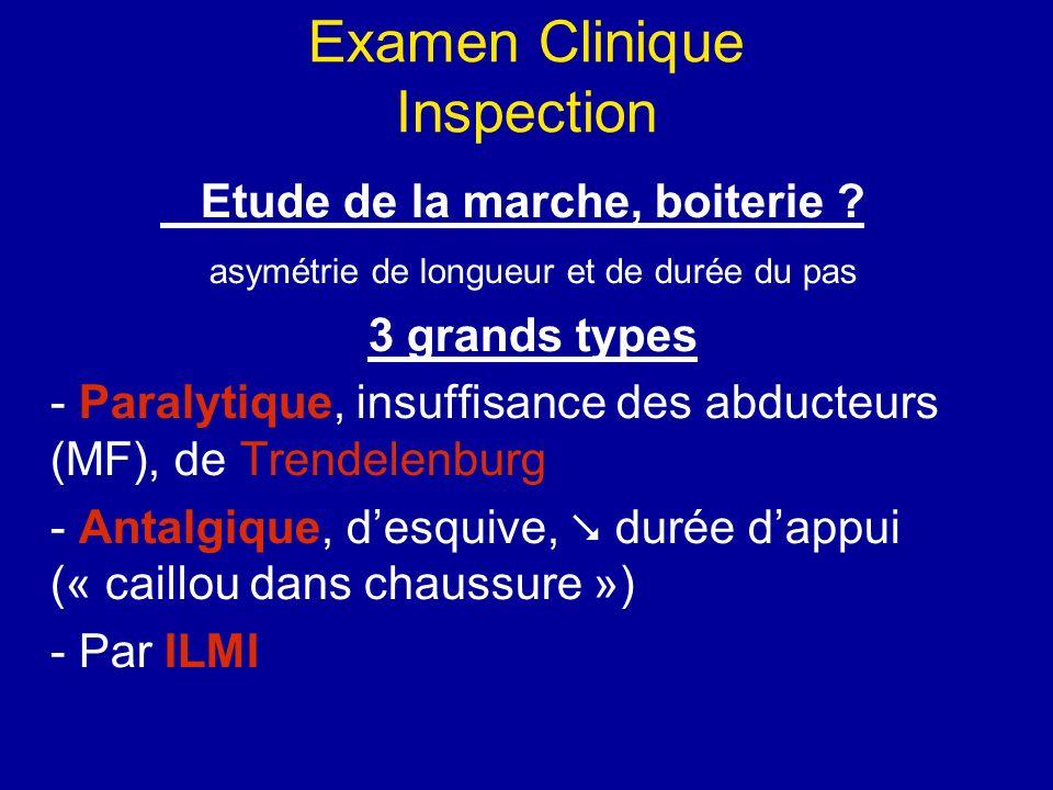 Examen Clinique Inspection Etude de la marche, boiterie .