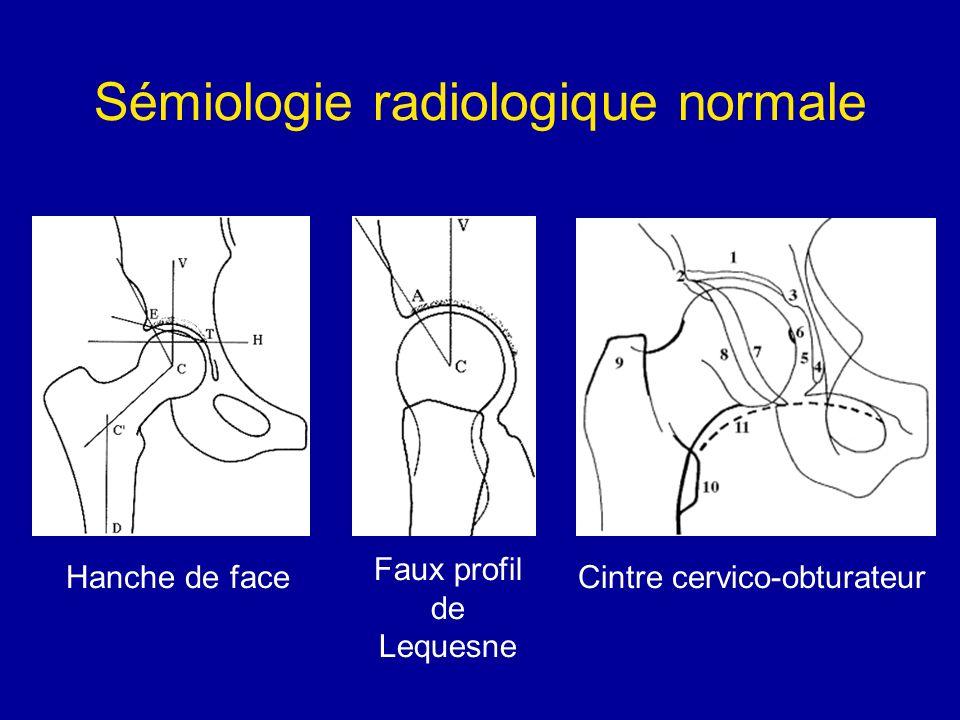 Sémiologie radiologique normale Cintre cervico-obturateurHanche de face Faux profil de Lequesne