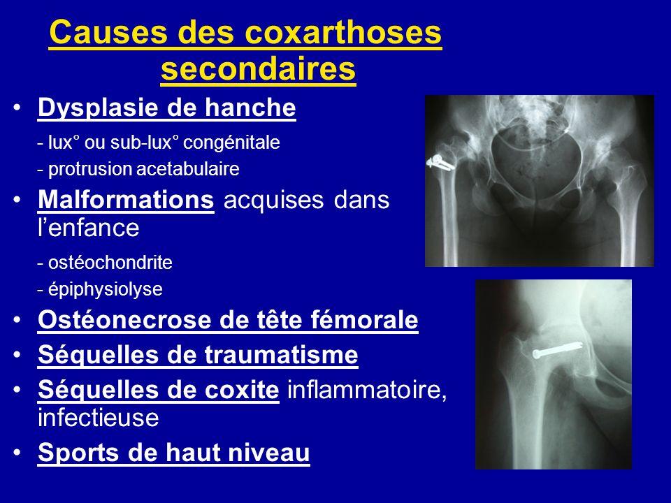 Causes des coxarthoses secondaires Dysplasie de hanche - lux° ou sub-lux° congénitale - protrusion acetabulaire Malformations acquises dans lenfance - ostéochondrite - épiphysiolyse Ostéonecrose de tête fémorale Séquelles de traumatisme Séquelles de coxite inflammatoire, infectieuse Sports de haut niveau