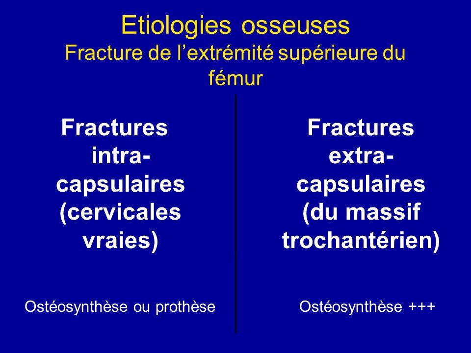 Etiologies osseuses Fracture de lextrémité supérieure du fémur Fractures intra- capsulaires (cervicales vraies) Fractures extra- capsulaires (du massif trochantérien) Ostéosynthèse ou prothèseOstéosynthèse +++