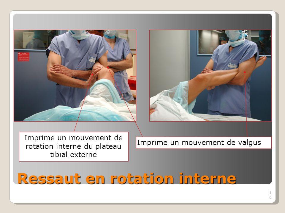10 Ressaut en rotation interne Imprime un mouvement de rotation interne du plateau tibial externe Imprime un mouvement de valgus