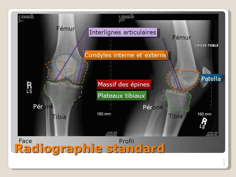 13 Radiographie standard Fémur Tibia Péroné Condyles interne et externe Massif des épines Patella Plateaux tibiaux Interlignes articulaires Face Profil