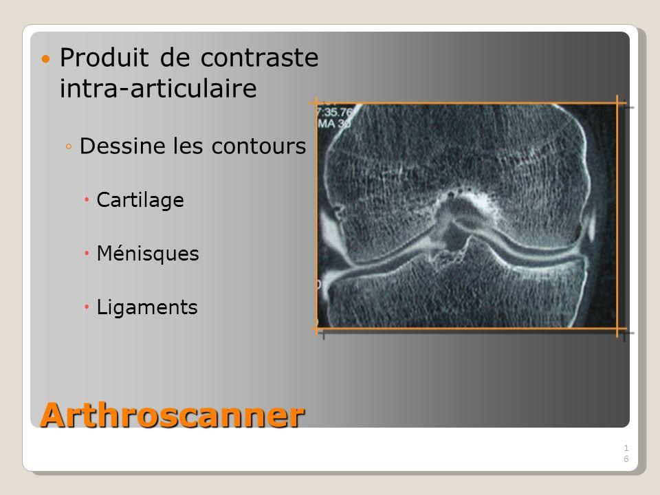16 Arthroscanner 16 Produit de contraste intra-articulaire Dessine les contours Cartilage Ménisques Ligaments