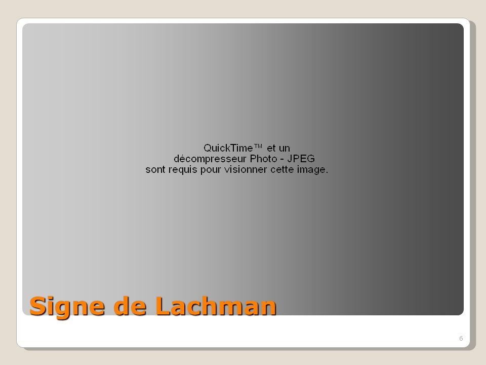 6 Signe de Lachman