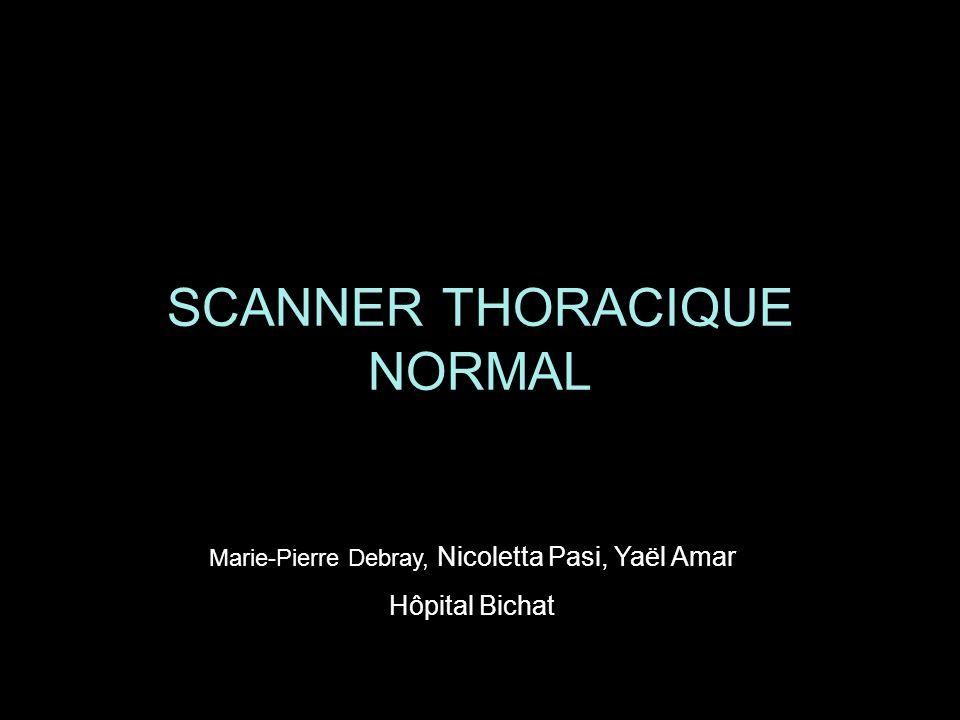 SCANNER THORACIQUE NORMAL Marie-Pierre Debray, Nicoletta Pasi, Yaël Amar Hôpital Bichat