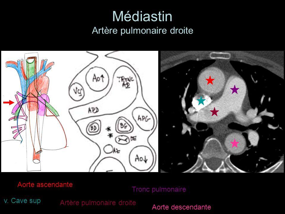 Médiastin Artère pulmonaire droite Aorte ascendante Aorte descendante Tronc pulmonaire Artère pulmonaire droite v. Cave sup