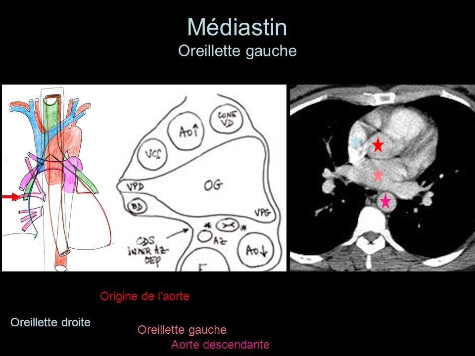 Médiastin Oreillette gauche Oreillette gauche Origine de laorte Aorte descendante Oreillette droite
