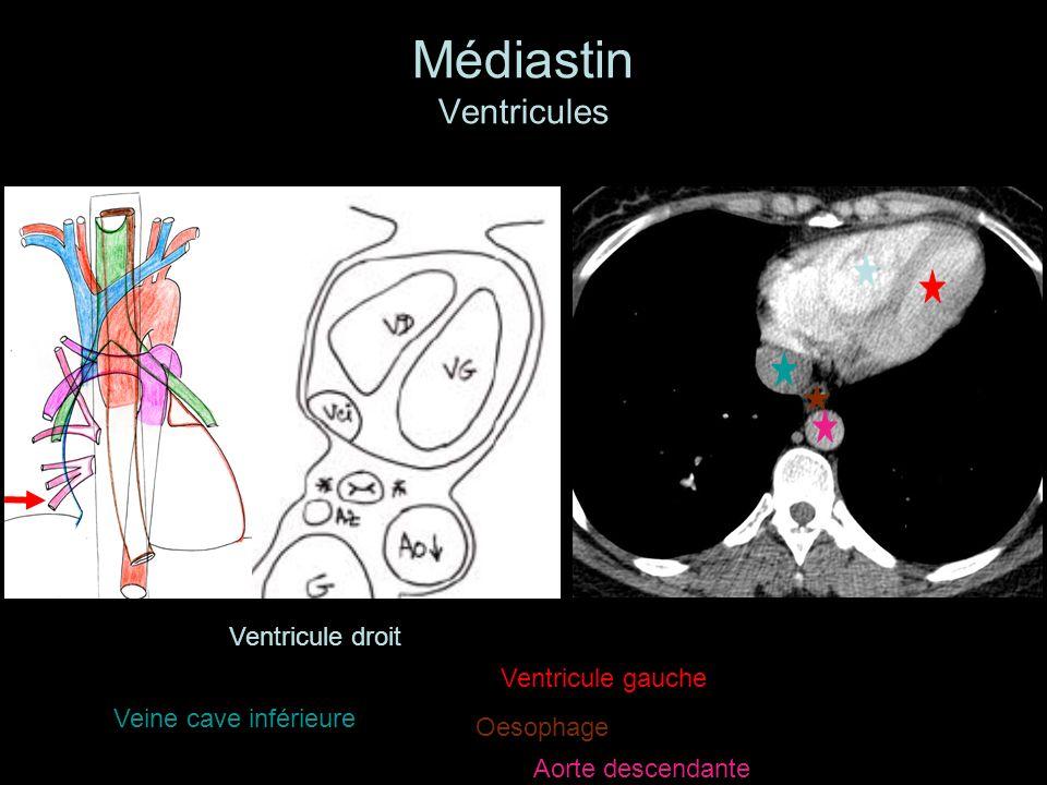 Médiastin Ventricules Ventricule droit Ventricule gauche Veine cave inférieure Aorte descendante Oesophage