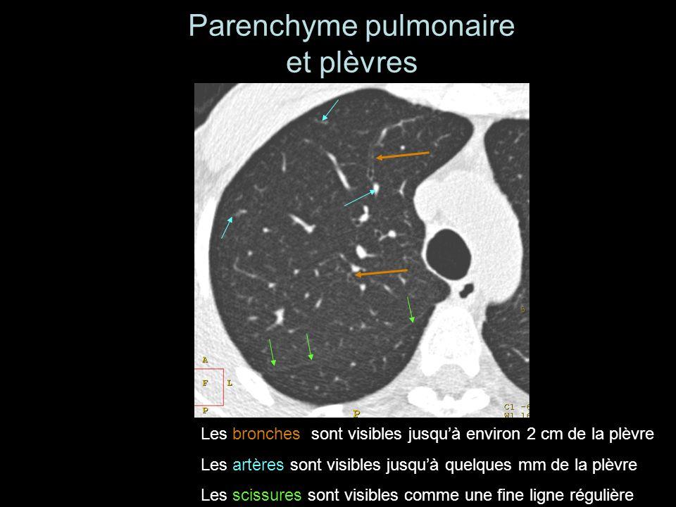 Parenchyme pulmonaire et plèvres Les bronches sont visibles jusquà environ 2 cm de la plèvre Les artères sont visibles jusquà quelques mm de la plèvre