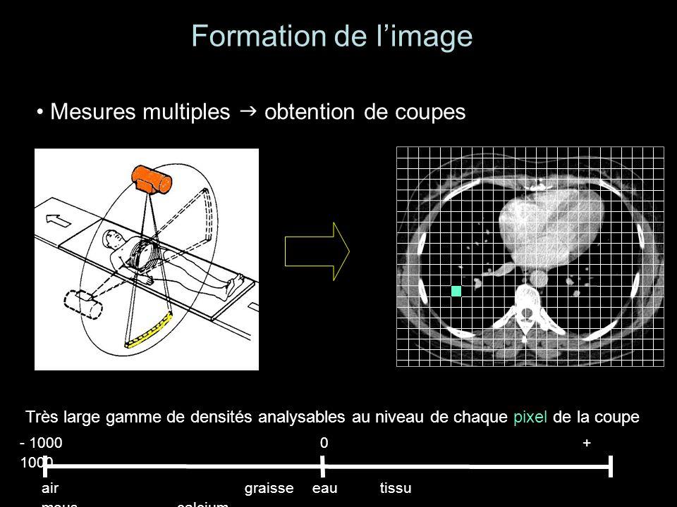 Très large gamme de densités analysables au niveau de chaque pixel de la coupe Formation de limage Mesures multiples obtention de coupes - 1000 0 + 1000 airgraisseeautissu mouscalcium