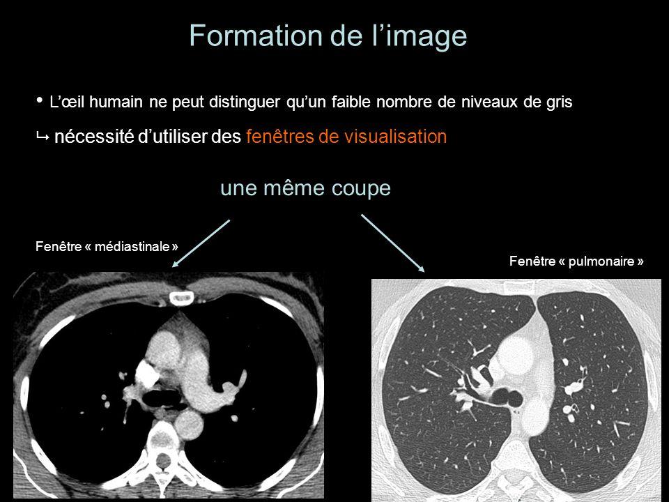 Formation de limage Lœil humain ne peut distinguer quun faible nombre de niveaux de gris nécessité dutiliser des fenêtres de visualisation une même coupe Fenêtre « médiastinale » Fenêtre « pulmonaire »