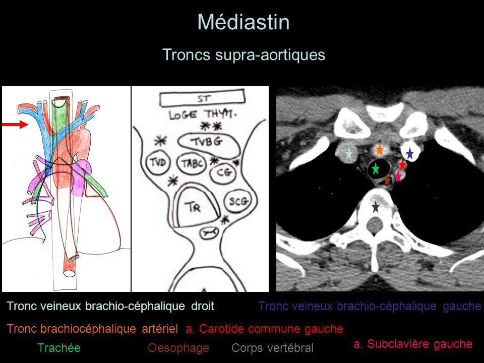 Médiastin Troncs supra-aortiques Tronc veineux brachio-céphalique droitTronc veineux brachio-céphalique gauche Tronc brachiocéphalique artériela.