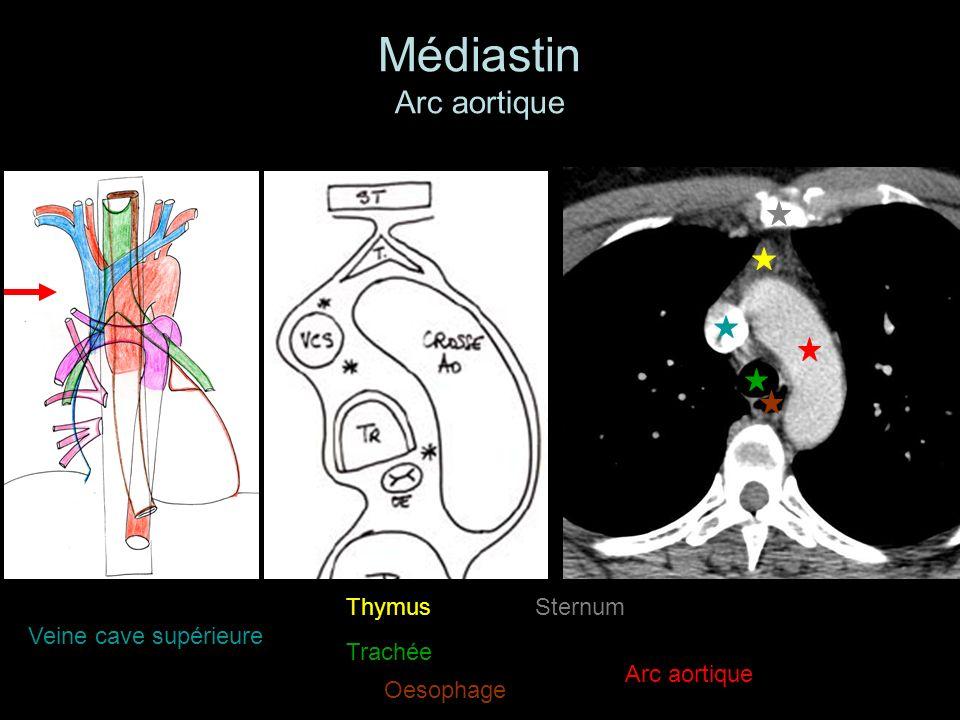 Médiastin Arc aortique Veine cave supérieure Arc aortique Thymus Trachée oesophage Oesophage Sternum