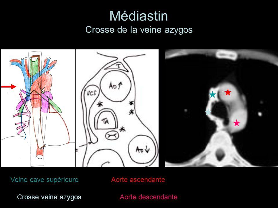 Médiastin Crosse de la veine azygos Veine cave supérieureAorte ascendante Aorte descendante Crosse veine azygos