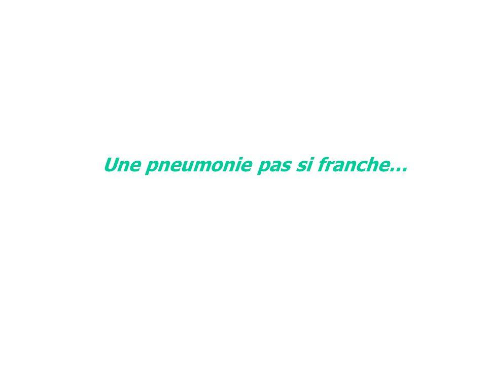 Une pneumonie pas si franche…